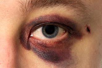 Okołooczodołowy krwiak: zdjęcie i schemat