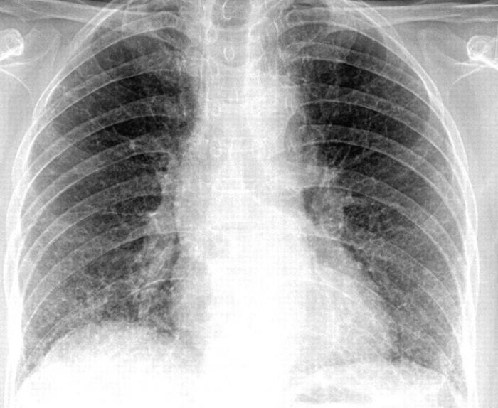 zwei mal röntgen lunge jetzt schatten