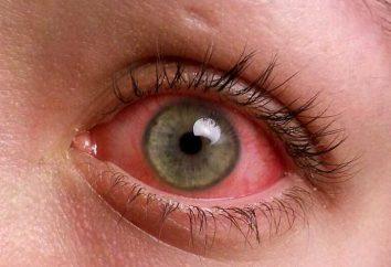 Co to jest zapalenie spojówek? Objawy, przyczyny i leczenie zapalenia spojówek