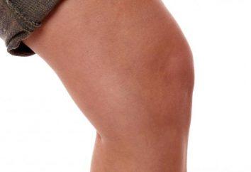 Ciò che caratterizza il trattamento della sinovite del ginocchio?
