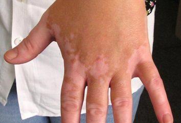 Maladie Vitiligo: Causes, symptômes et méthodes de traitement