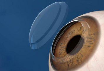 cornées Transplantation: description, indications, l'examen des coûts. microchirurgie oculaire