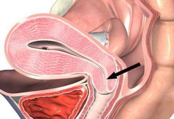 Cervicale cicatrice deformità: cause e trattamento. La cervice dopo il parto