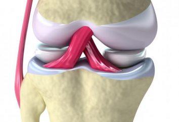 Przyczyny i objawy zapalenia błony maziowej stawu kolanowego