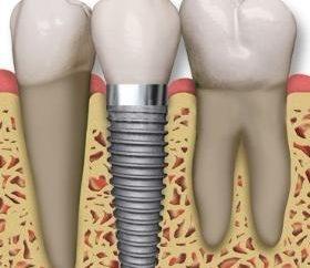 Isso dentistas recomendam, quando há uma necessidade de inserir os dentes?
