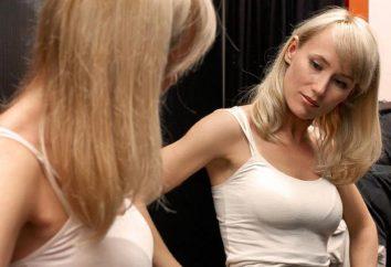 fios de elevação da mama: comentários