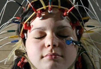 Isso mostra cérebro eletroencefalograma? Decurso do processo, a designação, denominação e comentários