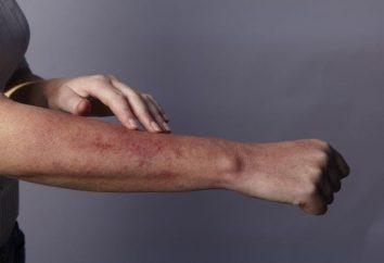 En éruption d'allergie: l'image, le traitement, la prévention