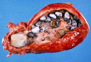 trattamento rapido ed efficace della colelitiasi