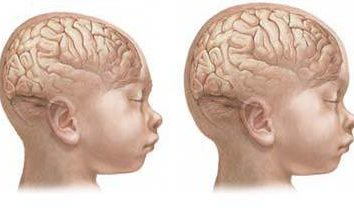 Mikrocefalia mózgu u dzieci: objawy. Microcephaly jest …