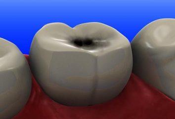 Auf den Zähnen der schwarzen Punkte: was zu tun ist?