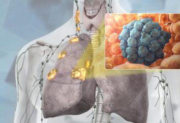 Rak płuca: objawy, stadium, leczenie, rokowanie