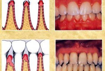 Les symptômes de la maladie parodontale – il est très grave!