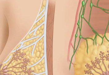 Mastitis piersią: objawy, przyczyny, leczenie