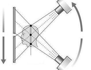 Was ist das Bild eines MRI? Dass die MRT-Diagnosen?
