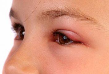 moscerino trattamento morso negli occhi in modi diversi