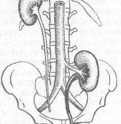 Il trattamento di ptosi renale. ptosi renale – cause e conseguenze