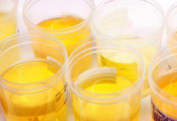 Ile można przechowywać próbki moczu w lodówce?