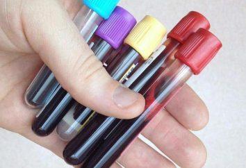 Mielociti si trovano nel sangue – che cosa significa? Regole e ragioni per l'aumento