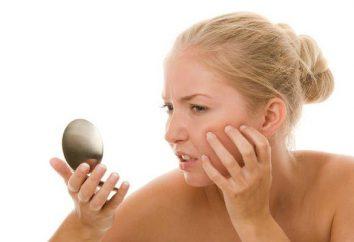 Effective Salbe zur Hautreizungen