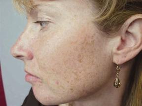 Volksmedizin: Wie Flecken auf seinem Gesicht angezeigt werden