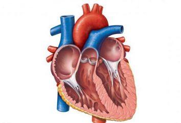Pulmonalvene Abnorme Entwässerung von Lungenvenen