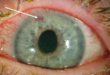 Glaucoma – sintomi e trattamenti