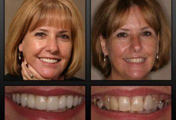 Retour beau sourire sera pas prothétiques amovibles