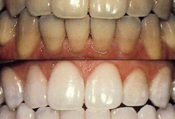 Wybielanie zębów: rodzaje procedur i cech jego zachowania
