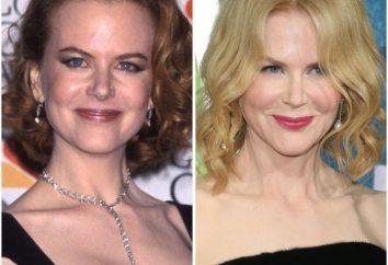 Nicole Kidman prima e dopo di plastica (foto)