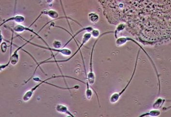 Dawca spermy – kto to jest? Jak zostać dawcą spermy?