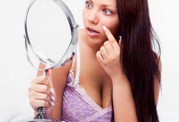 Alle Geheimnisse der Schönheit: wie schnell Akne aus dem Gesicht zu entfernen