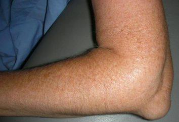 Jak leczyć posiniaczone kolano?