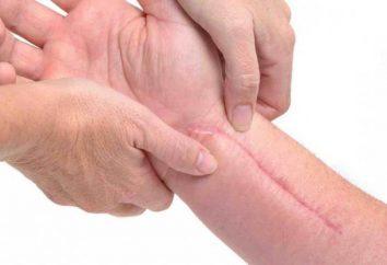 Bliznowce i blizny przerostowe: opis, rodzaje, przyczyny i leczenie