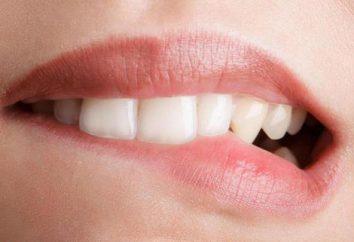 Se mordió los labios: ¿qué hacer?