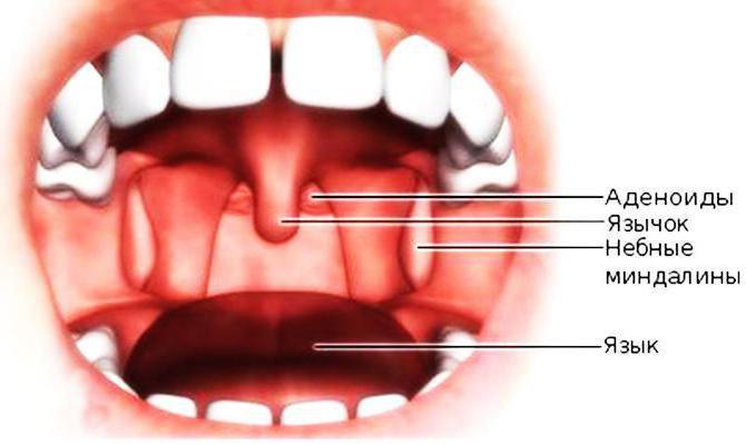 úvula inflamada: Tratamiento