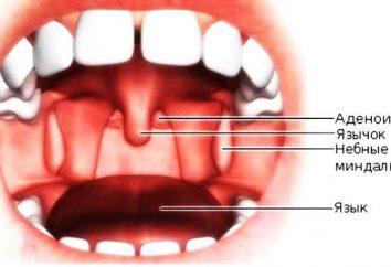 Zapalnym języczek: leczenie