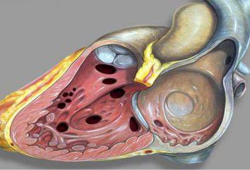 Ventrikelseptumdefekt. VSD in dem Fötus: Ursachen, Diagnose und Folgen