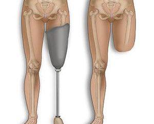 Amputation de la jambe: la remise en état des conséquences possibles