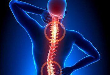 Diffuse osteoporosi: sintomi e trattamento