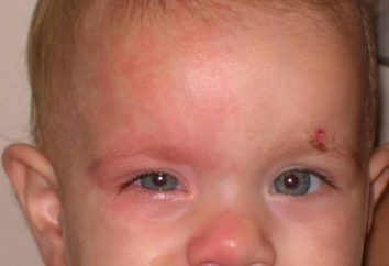 Harlequin Syndrome: Objawy, cechy i leczenie