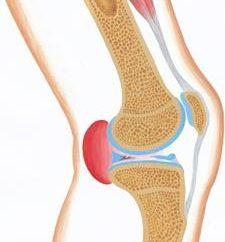 Bekker-Zyste hinter dem Knie. Je gefährlicher die Krankheit?