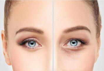 """Biorevitalization preparação """"Gialual"""": comentários cosmetologistas, características e eficiência de aplicação"""