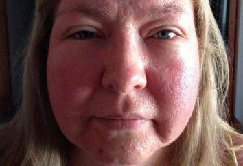 Alergia na twarz słońce: fotografia, objawy, leczenie