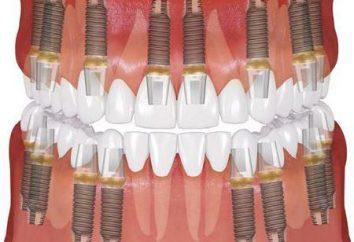 Implant OSSTEM. dentisti moderni armi