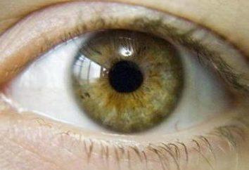 Hazel Augen: die charakteristische