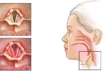 Do que tratar a laringite em adultos? Os sintomas e tratamento de laringite crica em adultos
