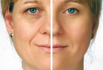 lifting facial no quirúrgico