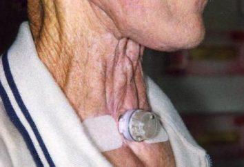 Protesi vocale: l'installazione, la sostituzione, recensioni. Le cause di edema dopo la protesi fonatoria