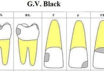 Classificazione per cavità nere: la descrizione, il grado di classe e di trattamento
